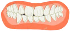 Possible Link Between Bruxism and Periodontitis