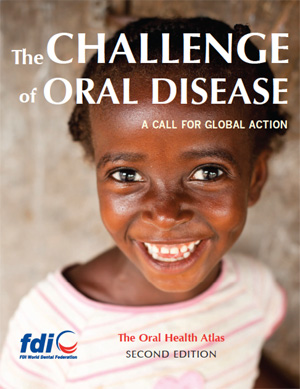 The Challenge of Oral Disease