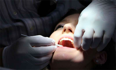 Tooth Loss Associated with Higher Risk of Heart Disease