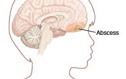 Tragic Story: A Connection between Periodontal Disease & Brain Abscess